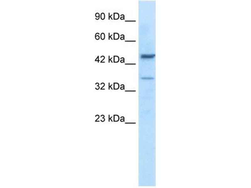 Western Blotting (WB) image for anti-GATA Binding Protein 3 (GATA3) (C-Term) antibody (ABIN2779713)