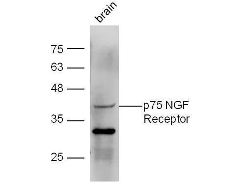 Western Blotting (WB) image for anti-Nerve Growth Factor Receptor (NGFR) (AA 287-337) antibody (ABIN725660)