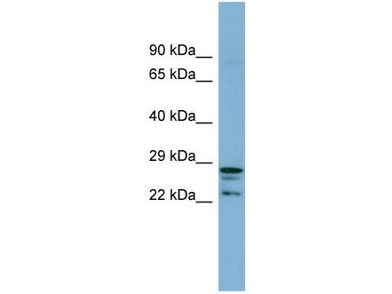 Western Blotting (WB) image for anti-CutC Copper Transporter Homolog (E. Coli) (CUTC) (Middle Region) antibody (ABIN504086)