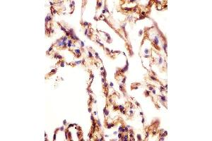 Image no. 4 for anti-Amine Oxidase, Copper Containing 3 (Vascular Adhesion Protein 1) (AOC3) (AA 613-640), (Center) antibody (ABIN652478)