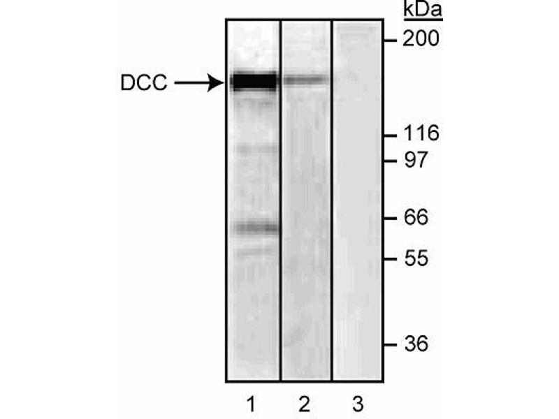 Western Blotting (WB) image for anti-Deleted in Colorectal Carcinoma (DCC) (Extracellular Domain) antibody (ABIN967442)