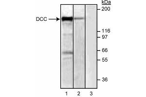 anti-Deleted in Colorectal Carcinoma (DCC) (Extracellular Domain) antibody