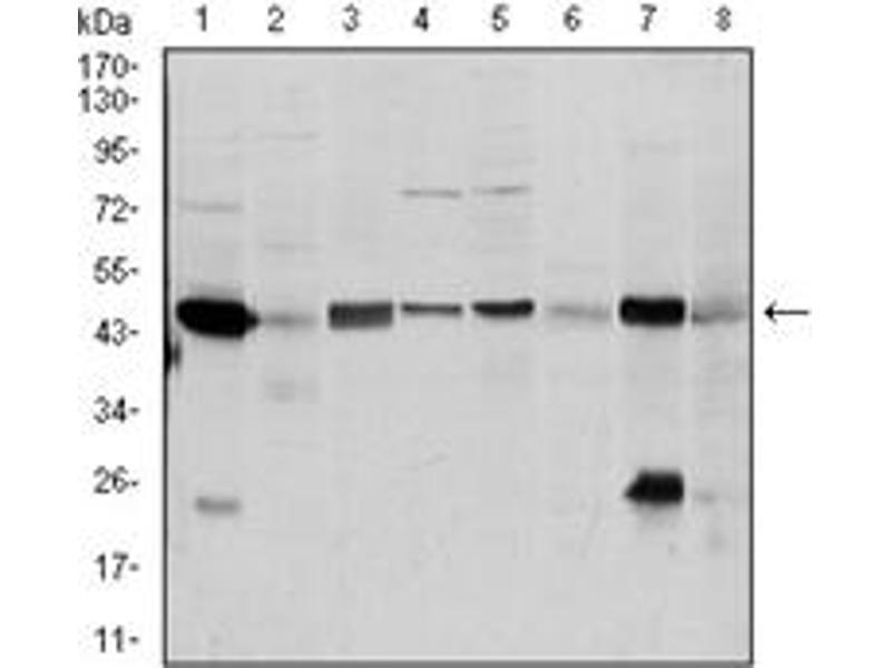 Western Blotting (WB) image for anti-Argininosuccinate Synthase 1 (ASS1) antibody (ABIN1105455)