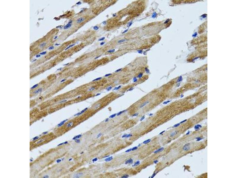Image no. 4 for anti-ATP Synthase, H+ Transporting, Mitochondrial F1 Complex, beta Polypeptide (ATP5B) antibody (ABIN2561285)