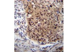 Image no. 1 for anti-Exostoses (Multiple)-Like 3 (EXTL3) (AA 352-382), (N-Term) antibody (ABIN952147)