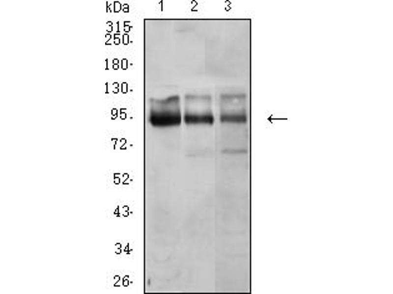 Western Blotting (WB) image for anti-Catenin (Cadherin-Associated Protein), beta 1, 88kDa (CTNNB1) (AA 1-100) antibody (ABIN5611273)