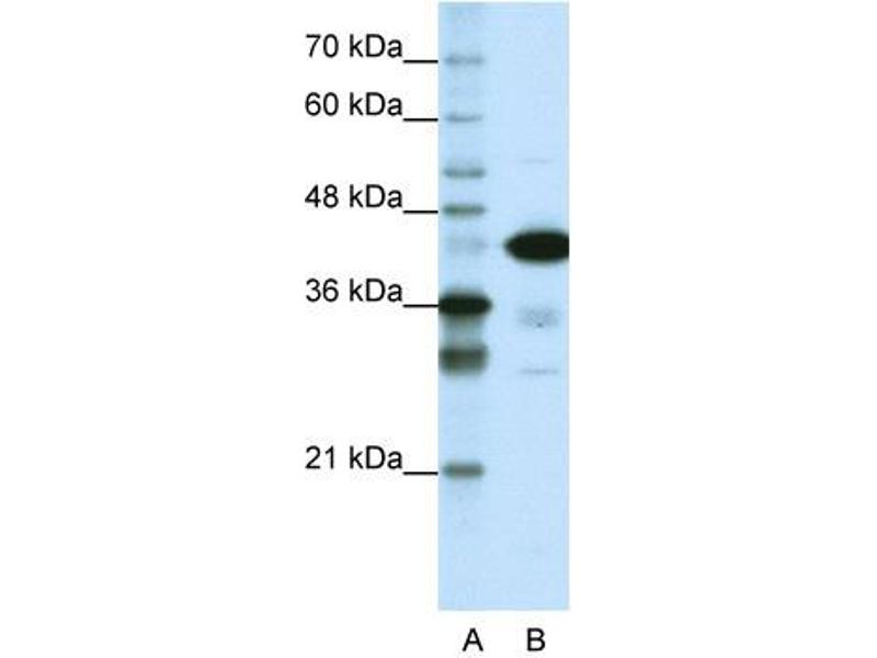 Western Blotting (WB) image for anti-TAR DNA Binding Protein (TARDBP) (N-Term) antibody (ABIN183734)
