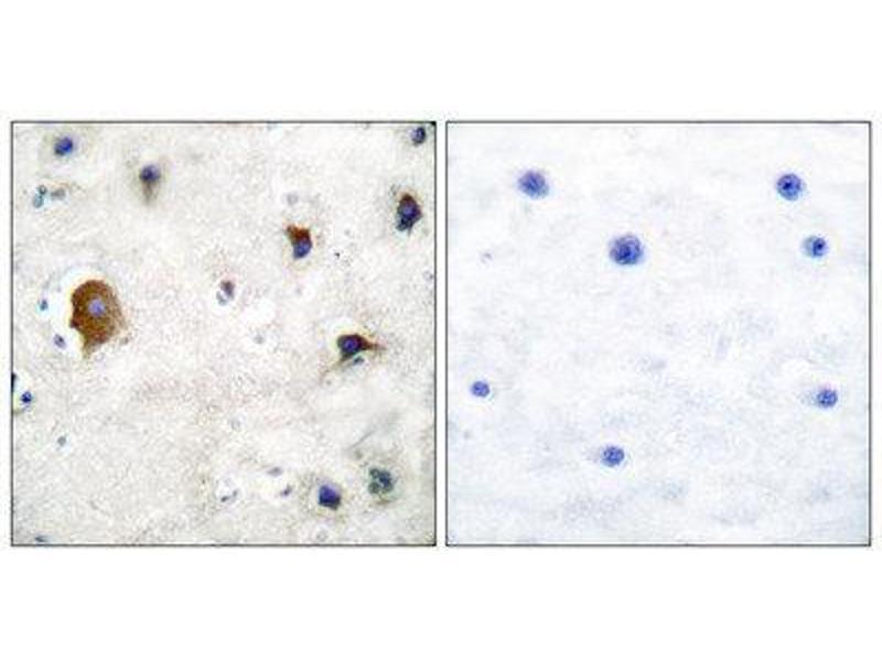 Immunohistochemistry (IHC) image for anti-Gap Junction Protein, alpha 1, 43kDa (GJA1) (C-Term) antibody (ABIN1848480)