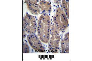 Image no. 1 for anti-FERM Domain Containing 7 (FRMD7) (AA 115-144), (N-Term) antibody (ABIN657294)