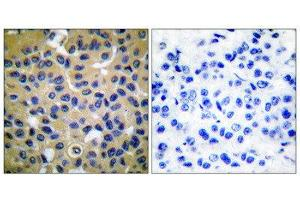 Image no. 4 for anti-Collagen, Type II (COL2) (N-Term) antibody (ABIN1848474)
