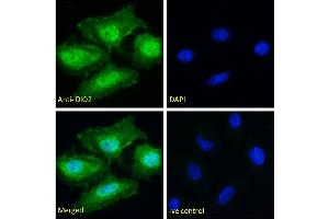 Image no. 1 for anti-Deiodinase, Iodothyronine, Type II (DIO2) (Internal Region) antibody (ABIN190862)