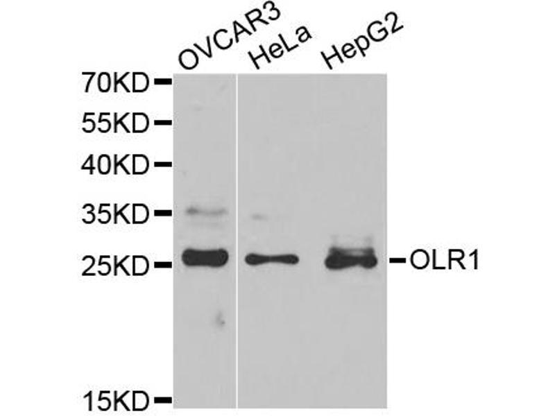 Image no. 1 for anti-Oxidized Low Density Lipoprotein (Lectin-Like) Receptor 1 (OLR1) antibody (ABIN6568820)