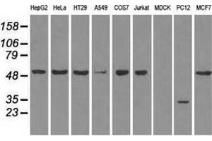 Image no. 3 for anti-Solute Carrier Family 2 (Facilitated Glucose/fructose Transporter), Member 5 (SLC2A5) antibody (ABIN2721986)