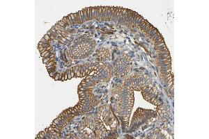 Immunohistochemistry (Paraffin-embedded Sections) (IHC (p)) image for anti-Spectrin Beta, Non-Erythrocytic 1 (SPTBN1) antibody (ABIN4355579)