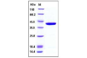 Image no. 1 for Glutamine--Fructose-6-Phosphate Transaminase 1 (GFPT1) (AA 332-699) protein (ABIN2003902)