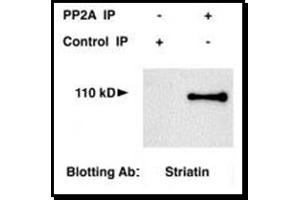 Western Blotting (WB) image for anti-Striatin (STRN) (AA 350-400), (Internal Region) antibody (ABIN259102)