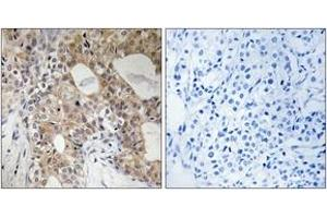 Image no. 1 for anti-Sphingosine Kinase 2 (SPHK2) (AA 580-629), (pThr614) antibody (ABIN1532169)