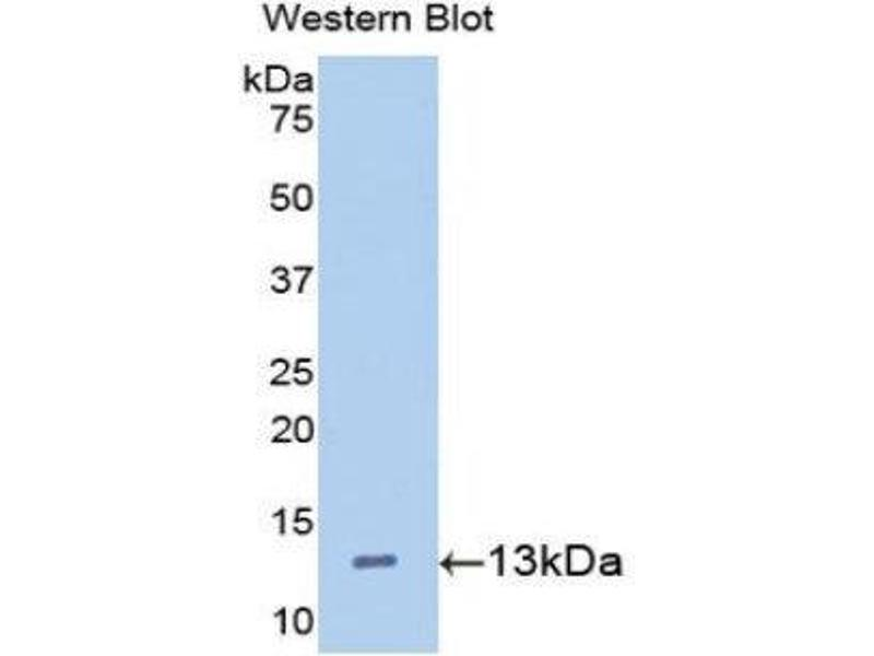 Western Blotting (WB) image for anti-Hepcidin Antimicrobial Peptide (HAMP) (AA 24-83) antibody (ABIN1175293)