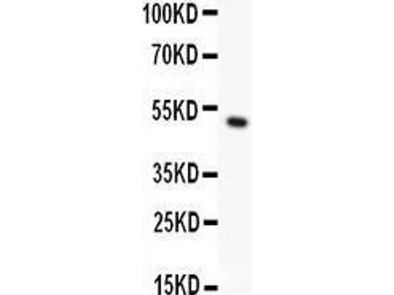 Western Blotting (WB) image for anti-Ribosomal Protein S6 Kinase, 90kDa, Polypeptide 5 (RPS6KA5) (AA 540-665) antibody (ABIN3043424)