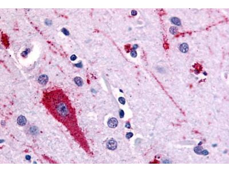Immunohistochemistry (Paraffin-embedded Sections) (IHC (p)) image for anti-Serotonin Receptor 5A (HTR5A) (Extracellular Domain) antibody (ABIN213372)