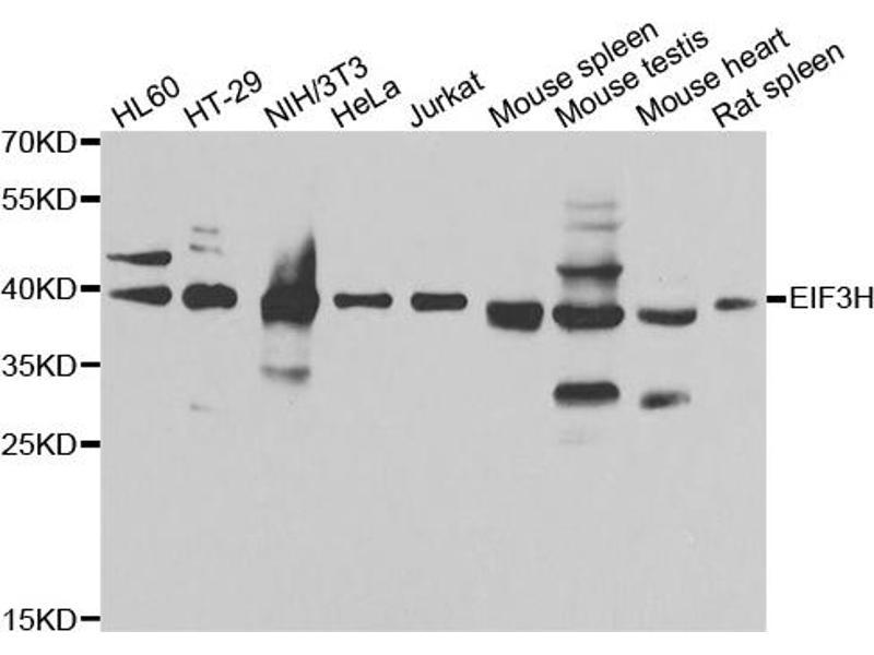 Image no. 3 for anti-Eukaryotic Translation Initiation Factor 3 Subunit H (EIF3H) antibody (ABIN6567922)