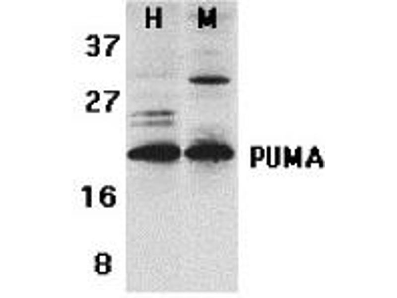 Western Blotting (WB) image for anti-BBC3 antibody (BCL2 Binding Component 3) (C-Term) (ABIN2498246)