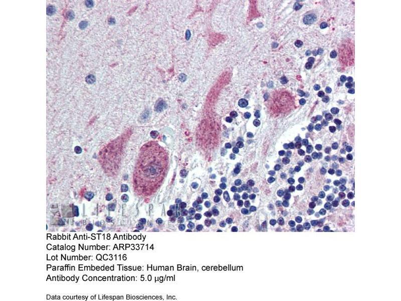 Immunohistochemistry (IHC) image for anti-Zinc Finger Protein 387 (Middle Region) antibody (ABIN404891)