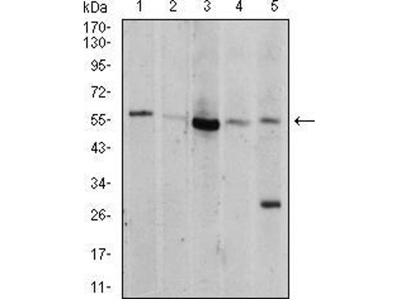 Western Blotting (WB) image for anti-AKT antibody (V-Akt Murine Thymoma Viral Oncogene Homolog 1) (AA 1-150) (ABIN5542263)