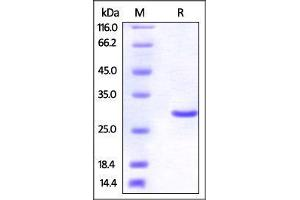 Image no. 1 for Ubiquitin Carboxyl-terminal Esterase L3 (Ubiquitin Thiolesterase) (Uchl3) (AA 2-230) protein (His tag) (ABIN2870703)