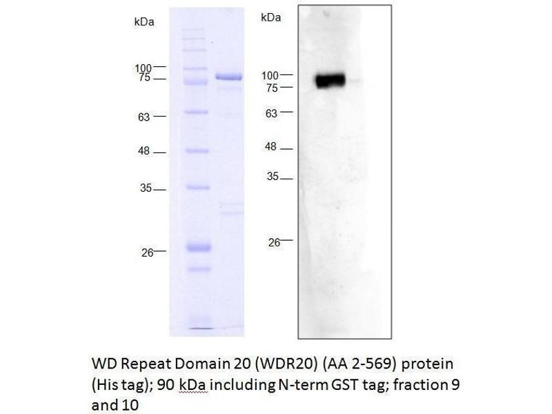 Western Blotting (WB) image for WD Repeat Domain 20 (WDR20) (AA 2-569) protein (His tag,GST tag) (ABIN3075585)