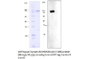 Image no. 2 for WD Repeat Domain 20 (WDR20) (AA 2-569) protein (His tag,GST tag) (ABIN3075585)