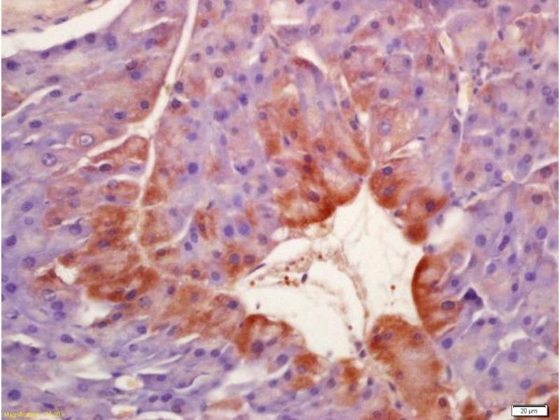 Immunohistochemistry (IHC) image for anti-SGK1 antibody (serum/glucocorticoid Regulated Kinase 1) (AA 400-431) (ABIN745703)