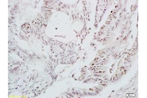 Immunohistochemistry (Paraffin-embedded Sections) (IHC (p)) image for anti-LEF1 antibody (Lymphoid Enhancer-Binding Factor 1) (ABIN735248)