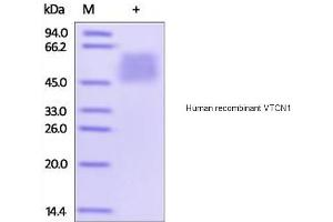 Image no. 1 for V-Set Domain Containing T Cell Activation Inhibitor 1 (VTCN1) (Active) protein (His tag) (ABIN1888740)