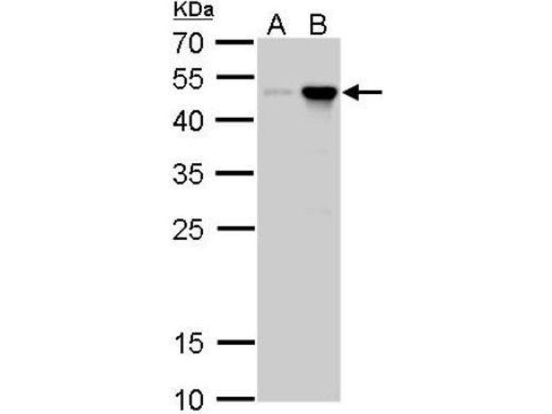 Western Blotting (WB) image for anti-Craniofacial Development Protein 1 (CFDP1) (Center) antibody (ABIN4265001)