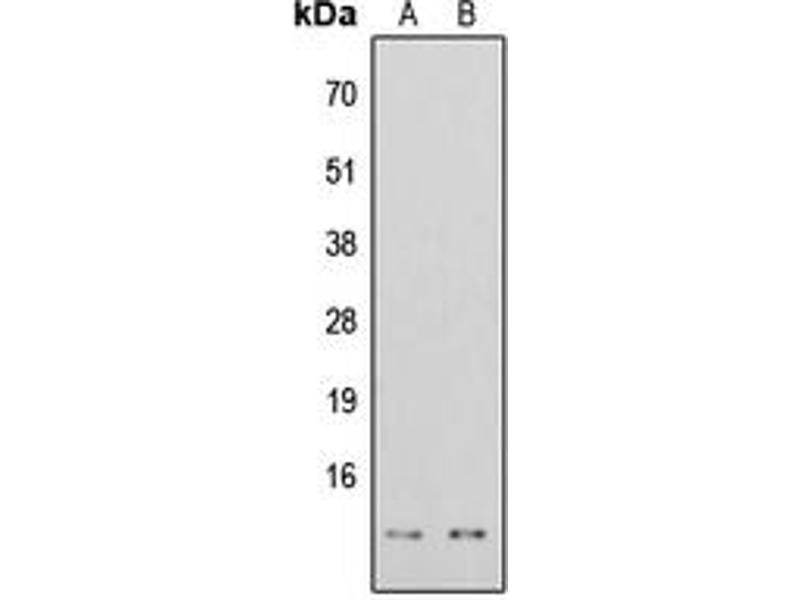 Image no. 3 for anti-Histone H4 (acLys16), (N-Term) antibody (ABIN2707570)
