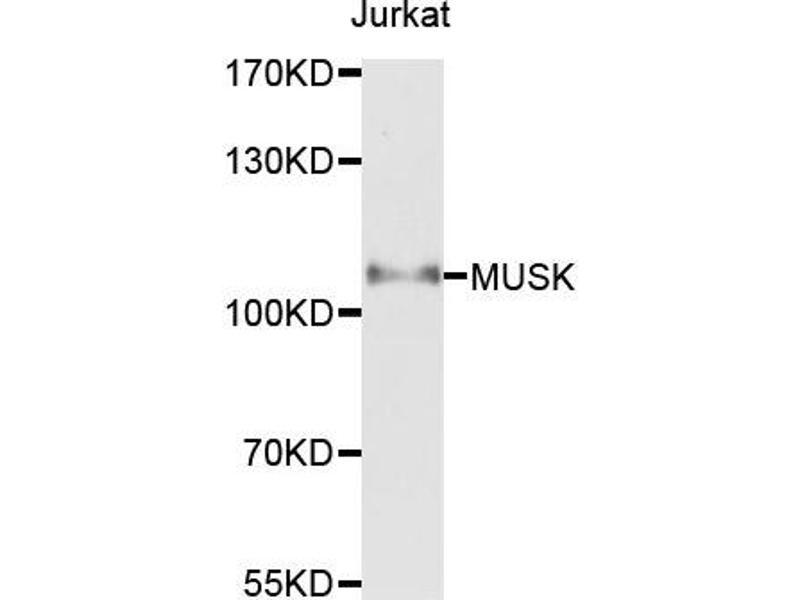 Western Blotting (WB) image for anti-MUSK antibody (Muscle, Skeletal, Receptor Tyrosine Kinase) (ABIN1873783)