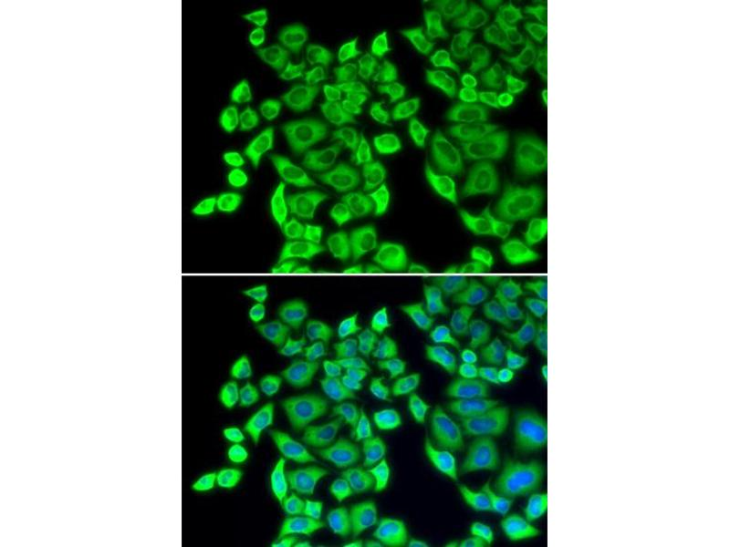 Image no. 1 for anti-Eukaryotic Translation Elongation Factor 1 delta (Guanine Nucleotide Exchange Protein) (EEF1D) antibody (ABIN6569241)