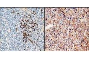 Immunohistochemistry (IHC) image for Rabbit anti-Human Ig (Chain kappa), (Light Chain), (N-Term) antibody (ABIN870365)