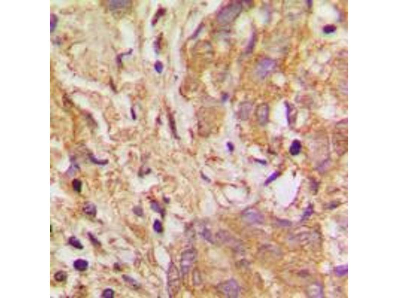 Immunohistochemistry (IHC) image for anti-Vascular Endothelial Growth Factor B (VEGFB) (Center) antibody (ABIN2707243)