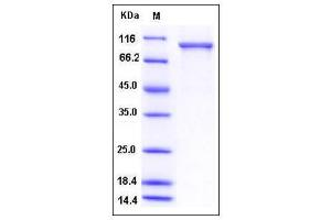 Image no. 1 for Ubiquitin Specific Peptidase 5 (USP5) (AA 1-835) protein (His tag) (ABIN2005325)