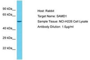 Image no. 1 for anti-Sterile alpha Motif Domain Containing 1 (SAMD1) (AA 434-483) antibody (ABIN6750543)