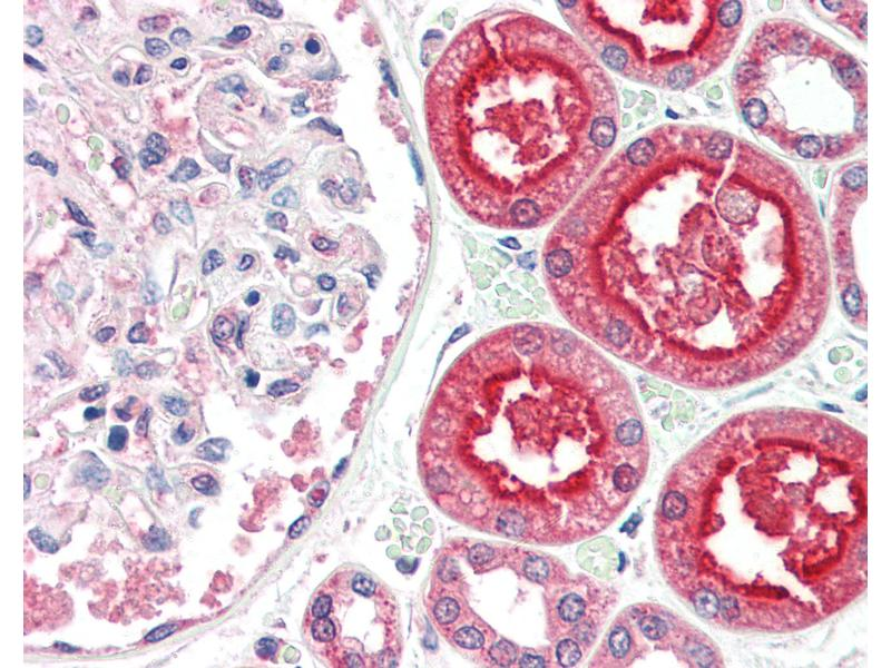 Image no. 3 for anti-Angiotensin I Converting Enzyme 2 (ACE2) (Internal Region) antibody (ABIN461888)
