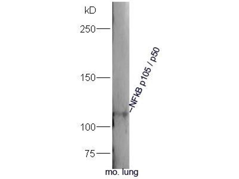 Western Blotting (WB) image for anti-Nuclear Factor of kappa Light Polypeptide Gene Enhancer in B-Cells 1 (NFKB1) (AA 63-113) antibody (ABIN673194)