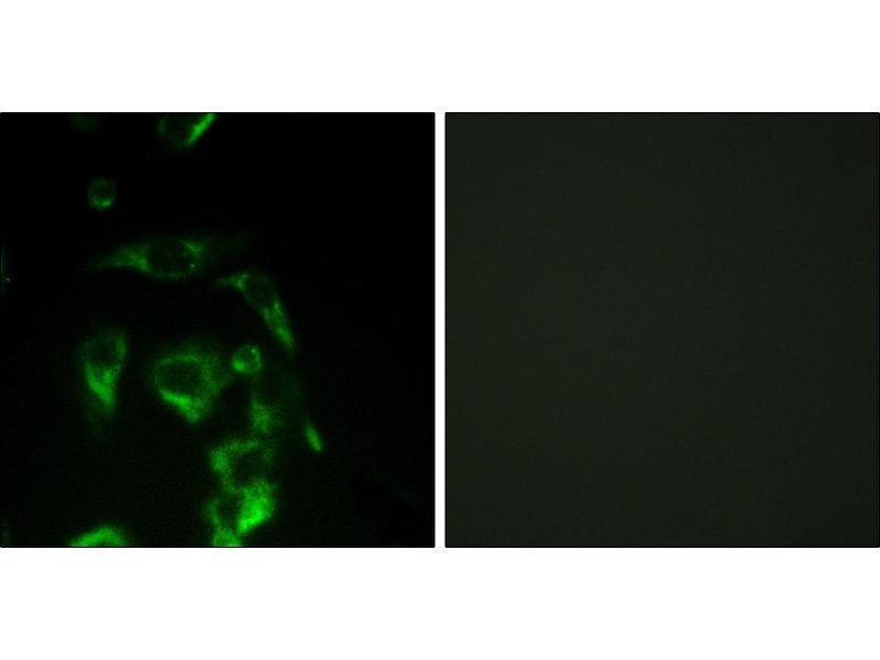 Image no. 2 for anti-Eukaryotic Translation Initiation Factor 4 Gamma, 1 (EIF4G1) (Internal Region) antibody (ABIN1576239)