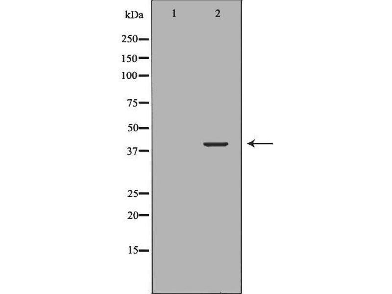 Image no. 1 for anti-Neutrophil Cytosolic Factor 4, 40kDa (NCF4) antibody (ABIN6263536)