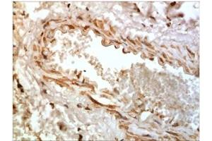 Immunohistochemistry (Paraffin-embedded Sections) (IHC (p)) image for anti-CXCR2 Antikörper (Chemokine (C-X-C Motif) Receptor 2) (ABIN4265473)