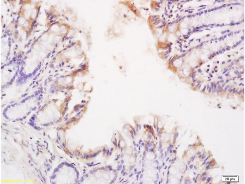 Immunohistochemistry (IHC) image for anti-TNFRSF1A antibody (Tumor Necrosis Factor Receptor Superfamily, Member 1A) (AA 22-72) (ABIN682018)