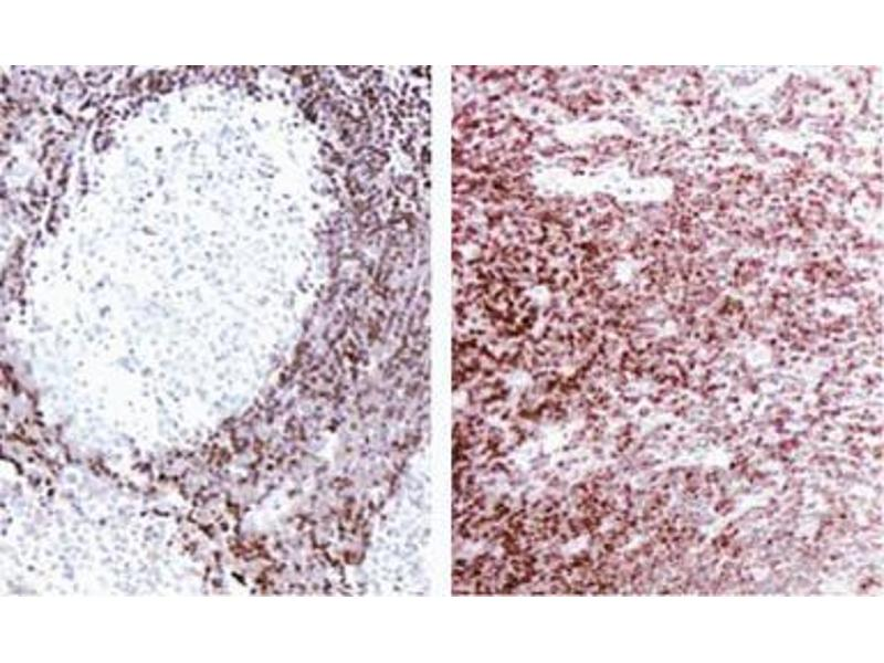 Immunohistochemistry (Paraffin-embedded Sections) (IHC (p)) image for anti-B-Cell CLL/lymphoma 2 (BCL2) (AA 41-54) antibody (ABIN967322)