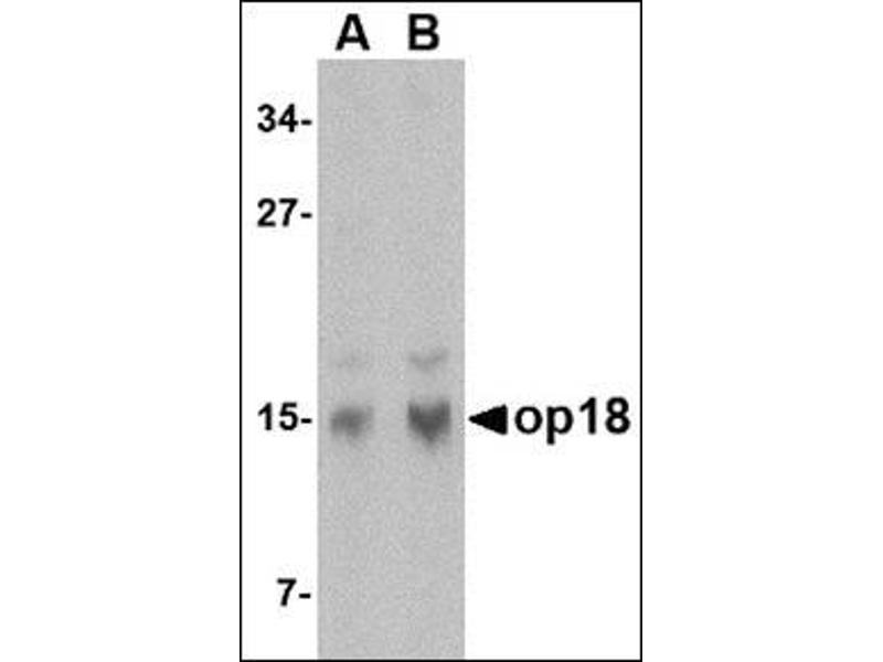 Western Blotting (WB) image for anti-Stathmin 1 antibody (STMN1) (N-Term) (ABIN500417)